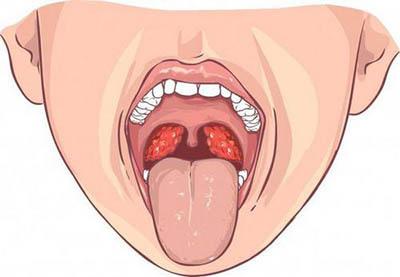 Причини першіння і кашлю в горлі