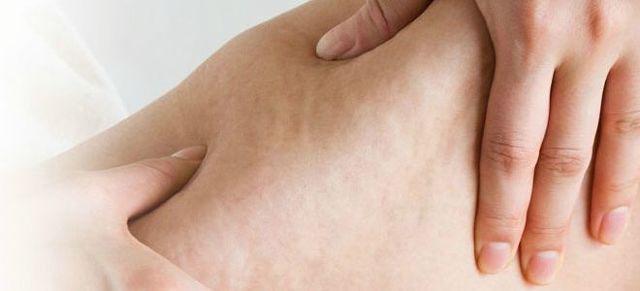 Від чого з'являється целюліт: основні причини, симптоми