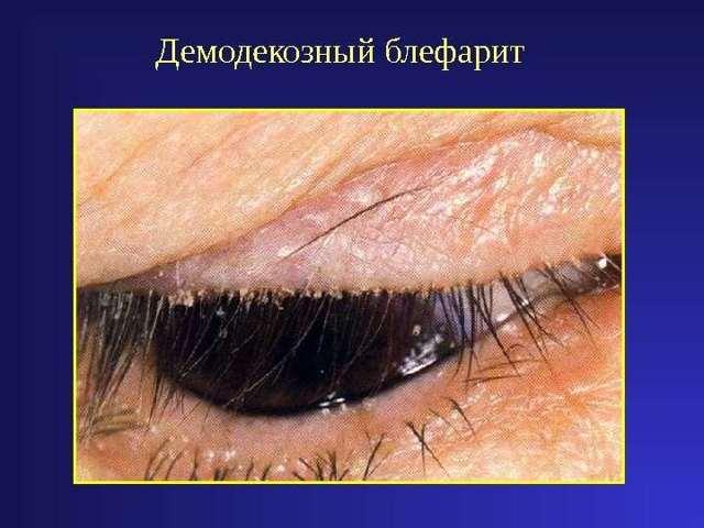 Лікування блефарити в домашніх умовах, як лікувати захворювання повік народними засобами