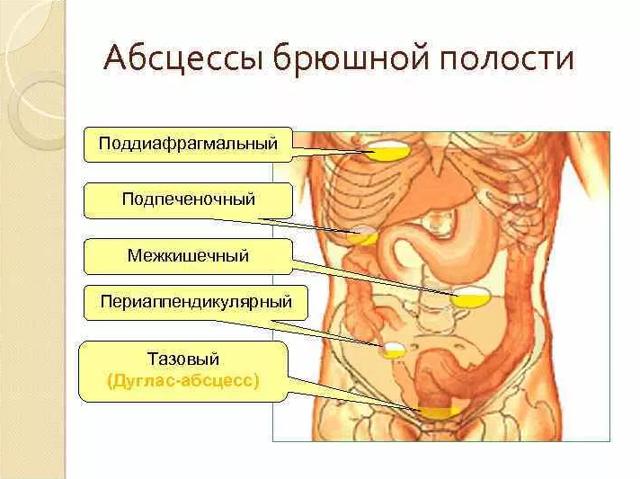 Абсцес черевної порожнини: причини, симптоми і методи лікування