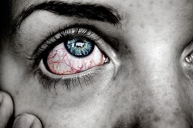Очні краплі Оксіал: інструкція із застосування, відгуки, аналоги