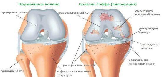 Біль в коліні збоку з внутрішньої сторони: причини, як лікувати