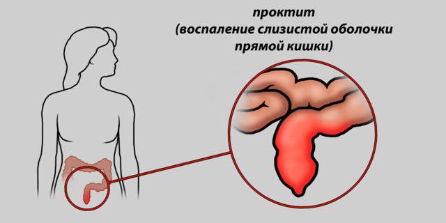 Тріщина прямої кишки: симптоми і лікування (операція, відновлення)