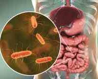 Синдром надлишкового бактеріального росту в кишечнику: симптоми і лікування