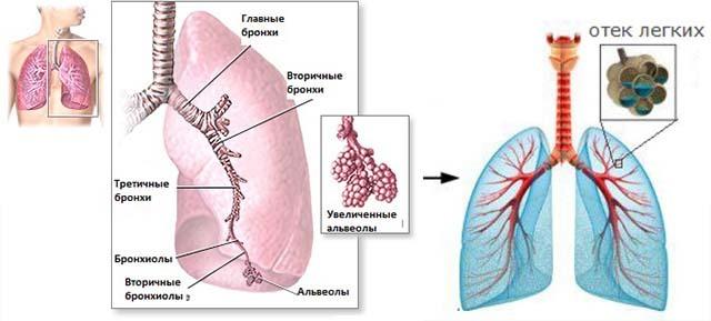 Невідкладна допомога при набряку легенів - алгоритм дій