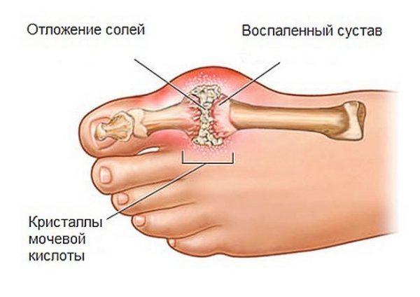 Лікування подагри народними засобами: на ногах і на руках, компреси, відвари