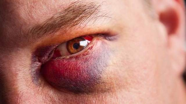 Причини набряку обличчя і очей: симптомом якого захворювання є, чому виникає набряклість