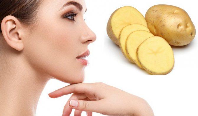 3161608 - Картопля від мішків під очима