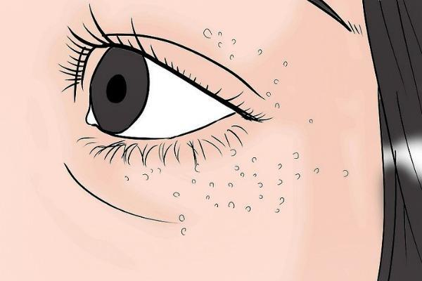 Білі точки під очима і навколо них, на століттях: як прибрати пухирці, фото