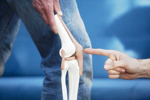 Перелом надколінника (колінної чашечки), тріщина: причини, симптоми, терміни лікування
