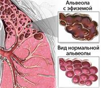 Емфізема легенів - що це таке і причини її розвитку