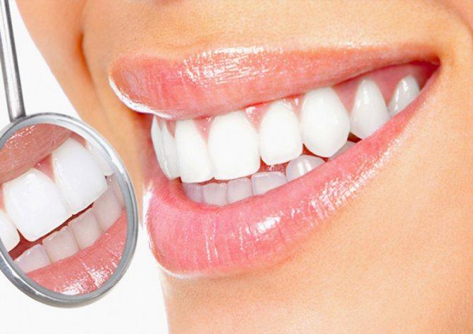 4 найбезпечніших і ефективних методу відбілювання зубів