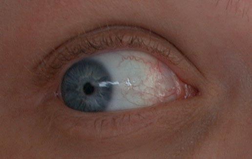 Болить очей в куточку ближче до носа і почервоніння з зовнішньої сторони