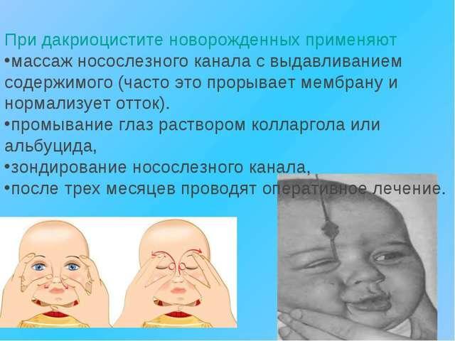 Масаж очного каналу у новонародженого: відео, як правильно робити
