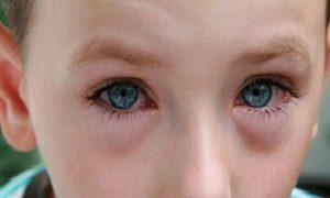 Лікування кон'юнктивіту очей у дорослих: як лікувати, профілактика при контакті з хворим