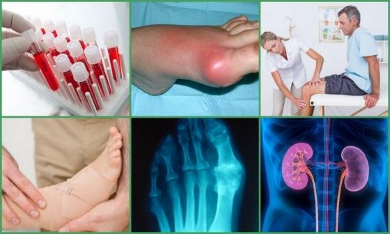 Подагра у жінок: ознаки, лікування, особливості, що за хвороба