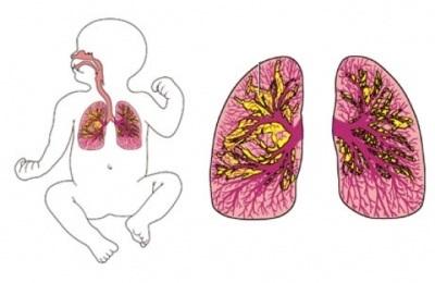 Бронхолегеневої дисплазії у недоношених дітей: симптоми, лікування, наслідки