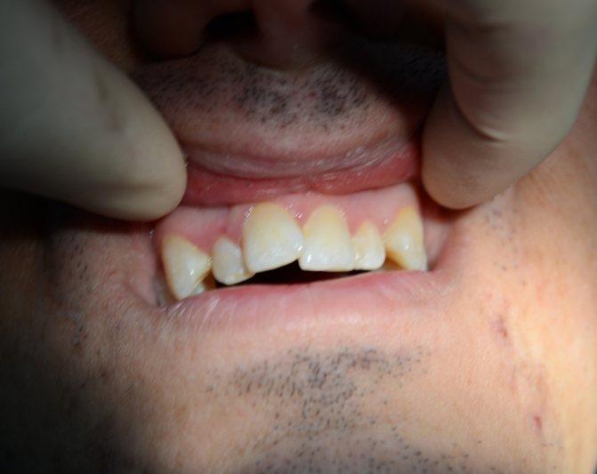 5 методів лікування скупченості зубів