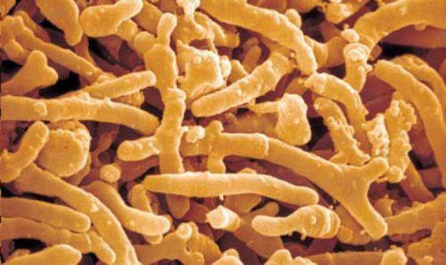 Аналіз калу на дисбактеріоз у грудничка: підготовка, проведення та розшифровка