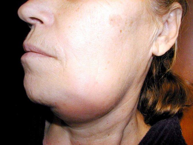 6 фактів про таке небезпечне захворювання, як остеомієліт щелепи