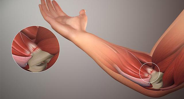 Запалення ліктьового суглоба, зв'язок, окістя: причини, симптоми, лікування