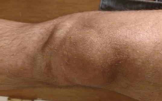 Шишка на коліні: спереду, ззаду, м'яка, болить або не болить, що це може бути