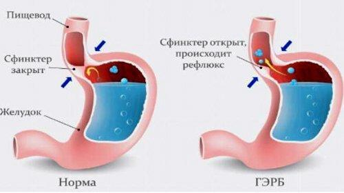 pH-метрія шлунка: підготовка і проведення дослідження