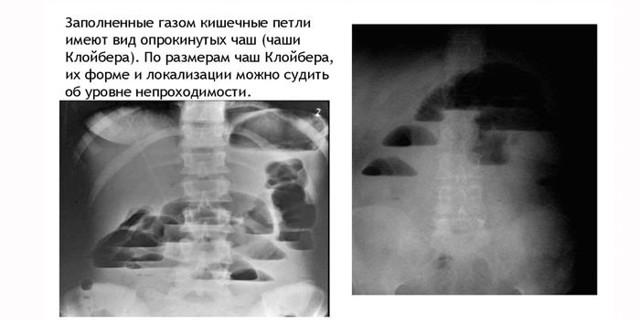 Рентген кишечника: що показує і як підготуватися до процедури?