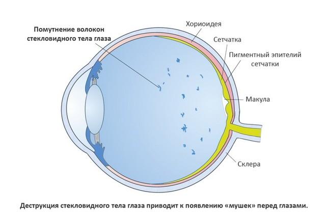 Зірочки в очах: причини, характерні симптоми, чому з'являються