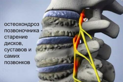 Йога при остеохондрозі: шийного, грудного і поперекового відділів