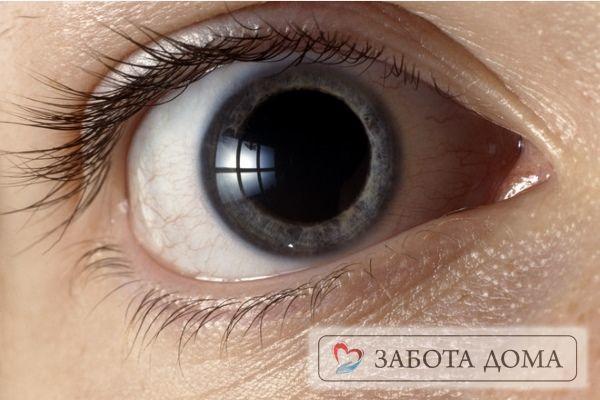 Зіниці при клінічній та біологічної смерті: реакція на світло, зовнішній вигляд
