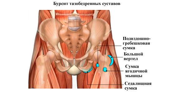 Бурсит тазостегнового суглоба: симптоми і лікування, вертельной, клубово-поперековий
