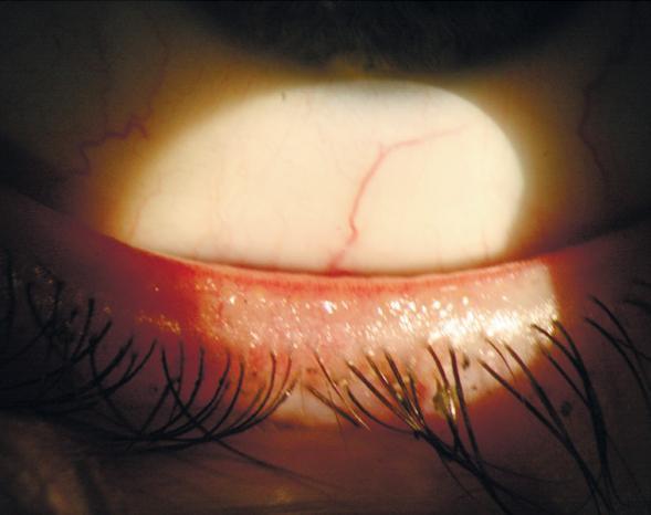 Демодекозне блефарит: лікування, симптоми кліщовий патології, фото