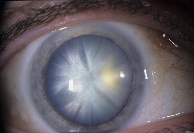 Стареча катаракта: що таке ядерна форма, які симптоми і код МКБ, як починають лікування початкової стадії, чи є народні засоби від цієї сенильной хвороби?