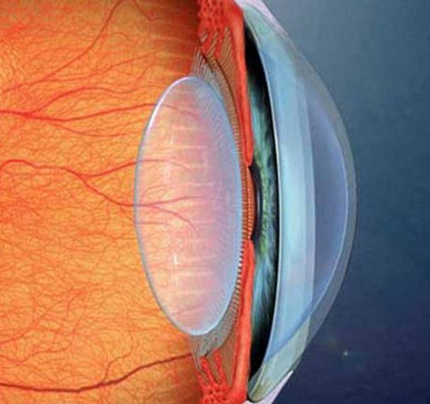 Артіфакія очі (правого, лівого або обох): що це таке, як лікувати