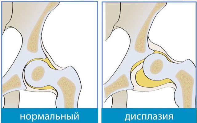 Незрілість тазостегнового суглоба у новонароджених: причини і лікування