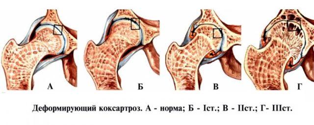 Коксартроз тазостегнового суглоба 2 ступеня: симптоми, лікування, без операції