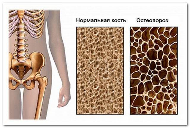 Дифузний остеопороз: що це таке, види, причини, діагностика та лікування