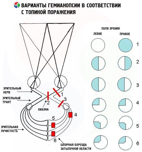 Геміанопсія (гомонимная, битемпоральная, биназальная, контралатеральная) при інсульті
