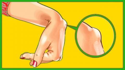 Гігрома кисті (на руці): причини, симптоми, діагностика, лікування