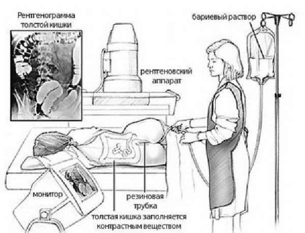 Іригоскопія і колоноскопія: відмінності методик і їх інформативність
