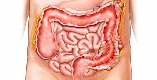 Пневматоз кишечника на УЗД: що це таке, причини і лікування патології