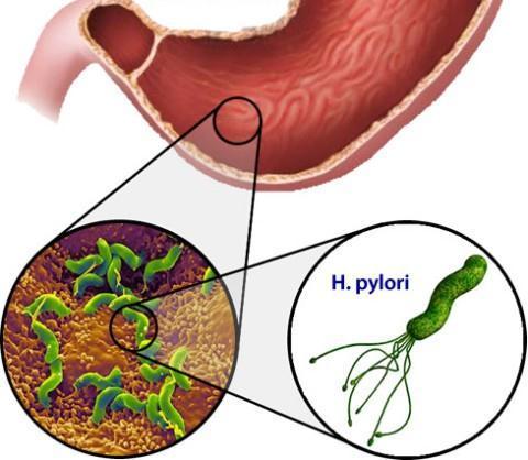 Ерозія дванадцятипалої кишки: симптоми і лікування (дієта, препарати, народне)