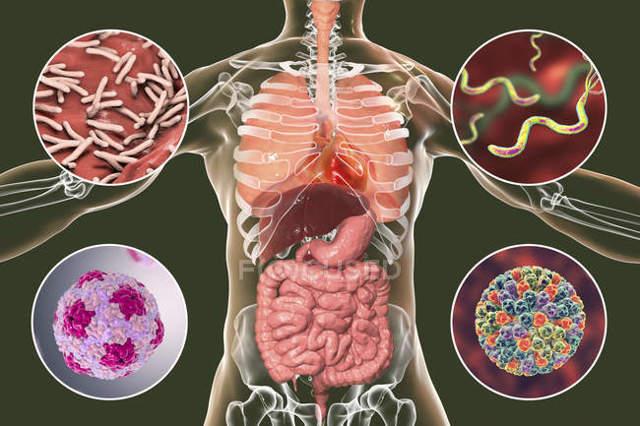 Ротавірусна інфекція: симптоми, лікування і профілактика