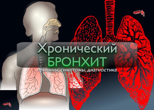Диференціальна діагностика бронхіту: ознаки і симптоми