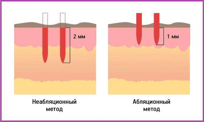 Абляционное і неабляціонное омолодження