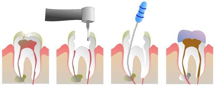 Алгоритм пломбування зубів