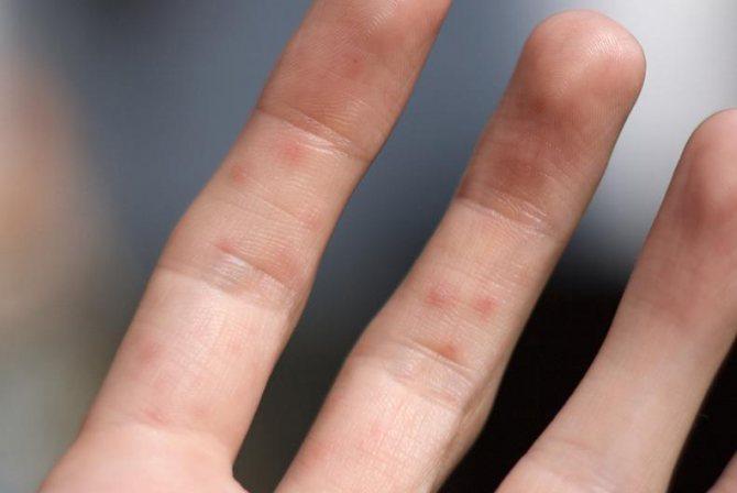 Алергія на пальцях.