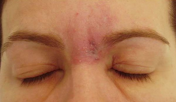 Алергія після ботокса