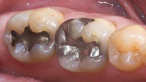 Амальгамного пломба в зубі
